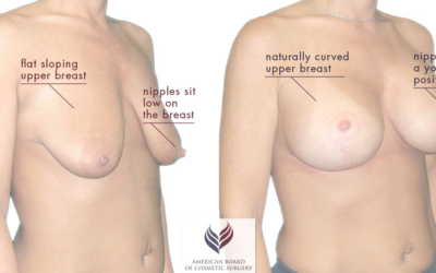 WHY YOU NEED A BREAST LIFT